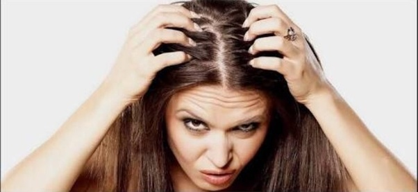 Image result for oily hair oily scalp