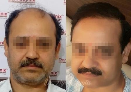 Can Someone Share His Her Hair Transplant Story Quora