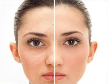 How to improve colour complexion of face quora laser skin treatments solutioingenieria Image collections