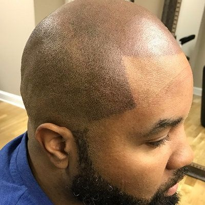 Does scalp micropigmentation work quora for Hair tattoo cost