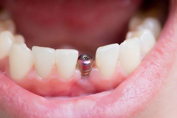 Kết quả hình ảnh cho Does implant placement hurt teeth