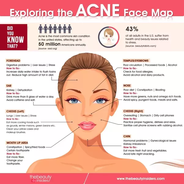 Is It Ever Helpful Or Beneficial To Pop A Pimple Quora - Chinese face map for acne