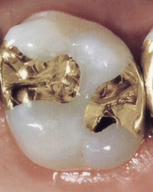 Can a tooth get multiple fillings on different sides of ...