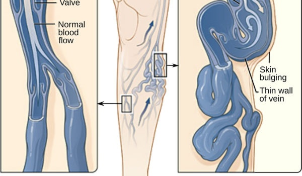 Varicose Veins Are Also The Commonly Seen Spider On Legs Natural Treatment Is Available In Form Of Lotion For Vein