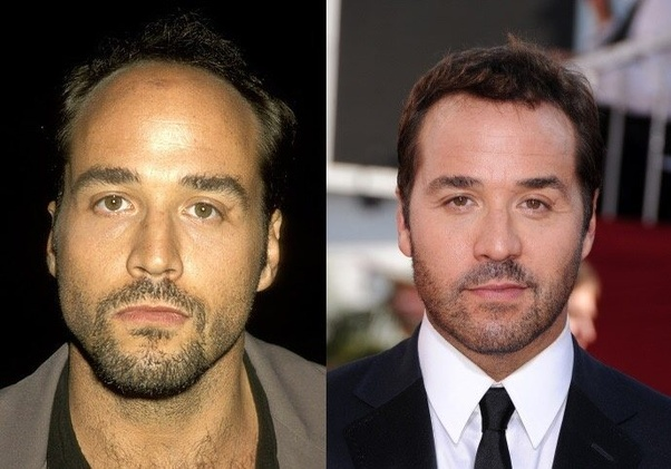 050ada88 Jeremey Piven started his career as the balding male character. By the end  of Entourage he's sporting a full head of hair as only Ari Gold would.