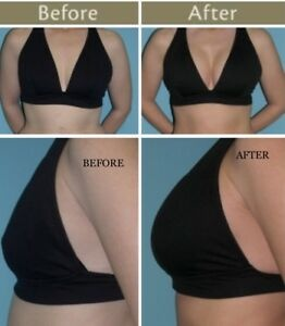 What Is Breast Lift Surgery