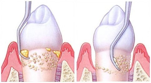 Can I remove plaque and tartar from my teeth without going ...