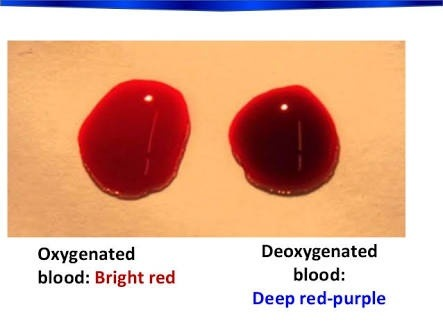We have two types of blood in our body, red and blue. But ...