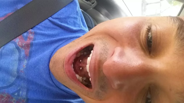 Pierced get why their guys do tongue Tongue Piercings: