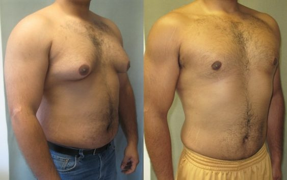 Has anyone had success and feel satisfied after getting gynecomastia