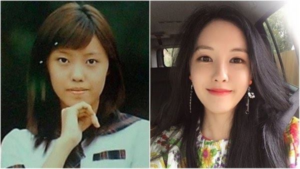 which kpop idols have openly had plastic surgery quora
