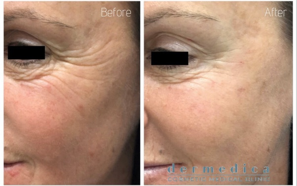 Where can Botox be injected around the eyes? - Quora