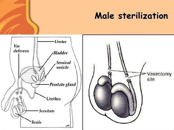 Which Structure In The Female Anatomy Is Cut For Birth Control