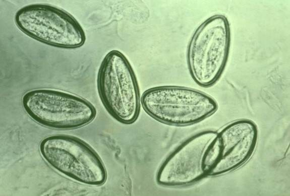 mi segít jobban a pinwormokban parazita ligula