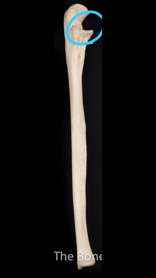 How to differentiate the ulna and the radius bones in a bone diagram ...