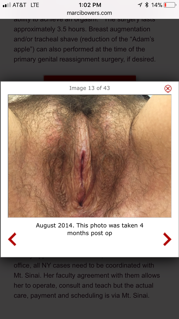 Pity, Nude trans vaginal penis