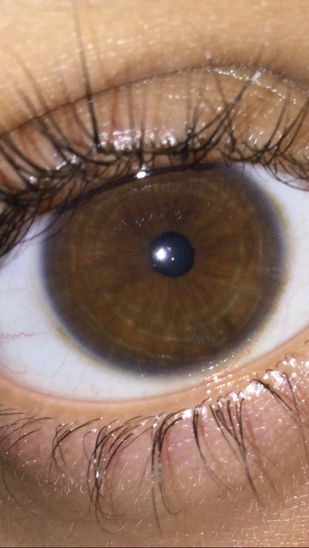 I have brown eyes and I have noticed that I have a blue ring
