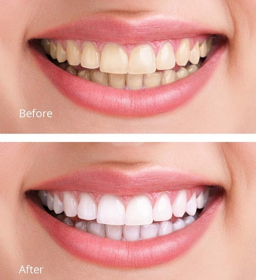 How To Remove The Yellow Stains Around My Braces Quora