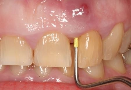 After 9 days on antibiotics after a root canal resulting in a