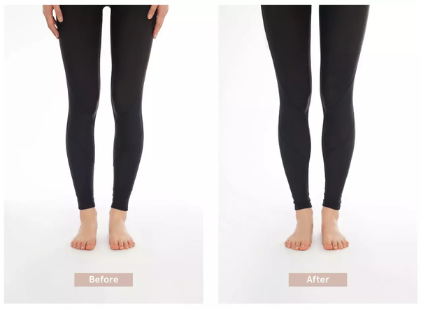 How Are Slight Bow Legs Corrected For Adults Is There A