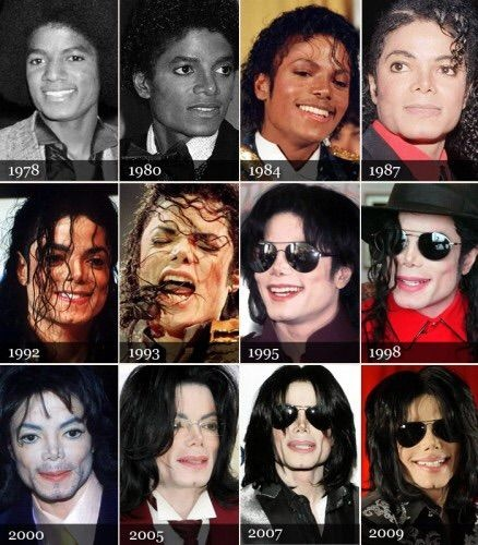 why did michael jacksons skin turn white quora