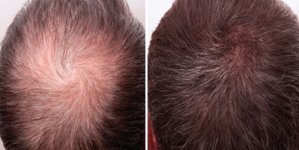 Does Derma Roller Works Well For Hair Regrowth Quora