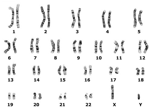 wikipedia sex chromosomes in Canberra
