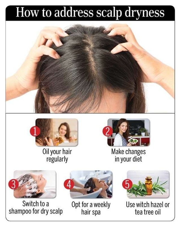 how to get rid of severe hair fall