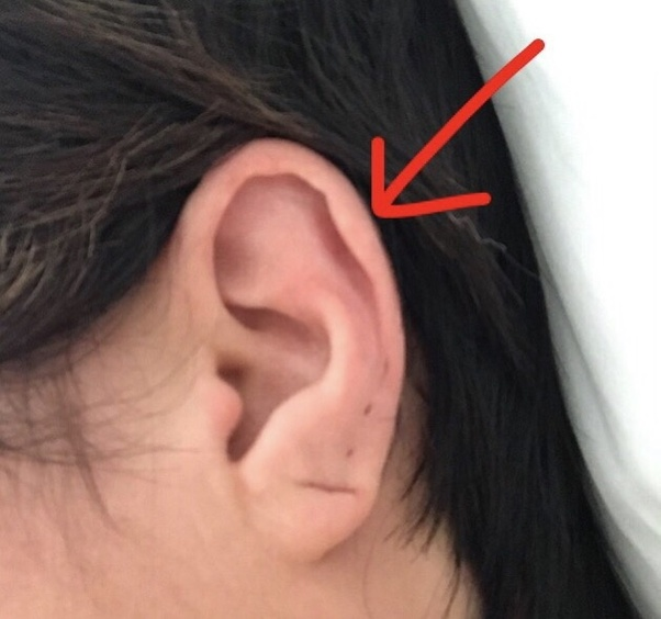 How Badly Does An Industrial Piercing Hurt Quora