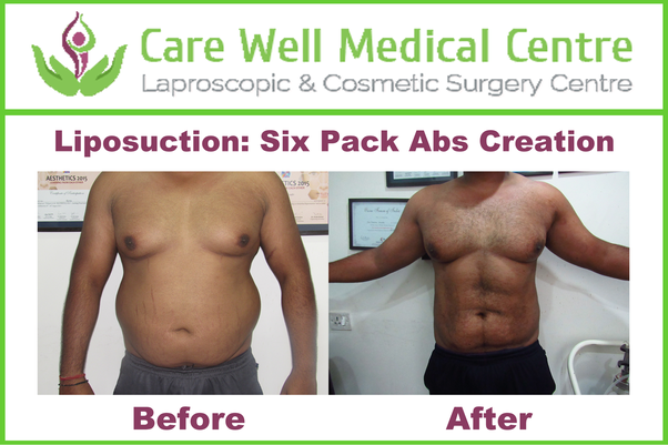 how much will liposuction cost in india quora