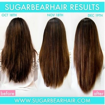 Does Sugarbearhair Vitamin Work For New Hair Growth Quora
