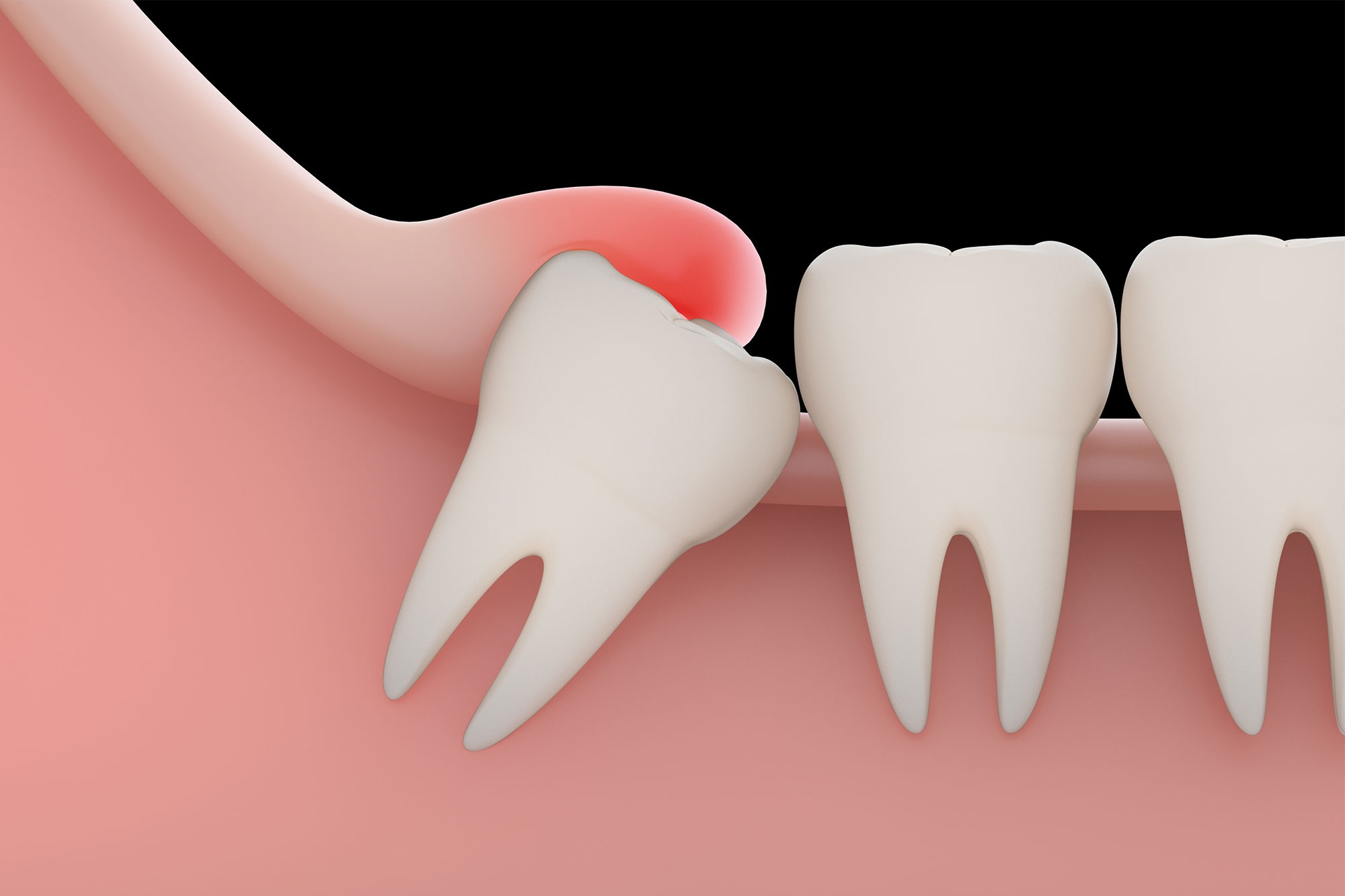 Are not Oral surgery tooth extraction cost think, you