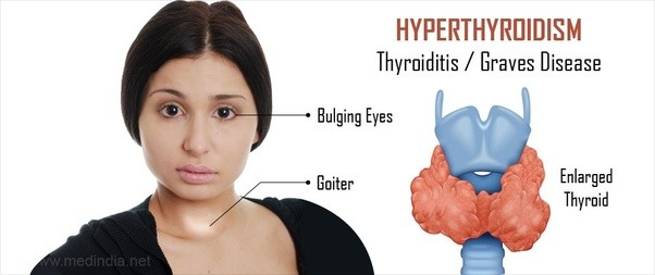 What Is The Difference Between Hypothyroidism And Hyperthyroidism