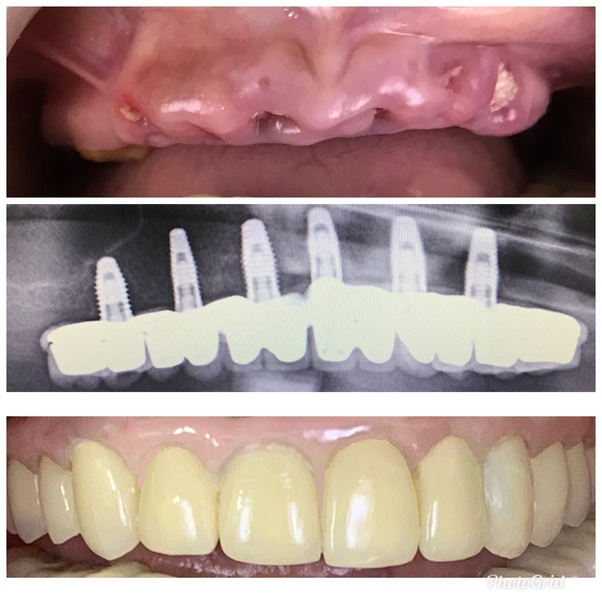 What is the cost of a dental crown in India? - Quora