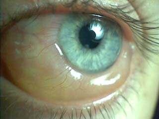 如何消除我眼球上的泡沫