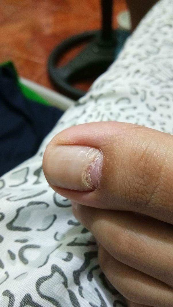 Something weird is happening to my big toenail. It looks like it\'s ...