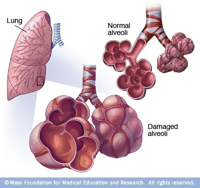 What Are The Most Common Causes For An Enlarged Alveoli Quora