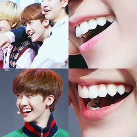 Do K Pop Idols Take Off Their Dental Braces For Every Show Interviews Quora