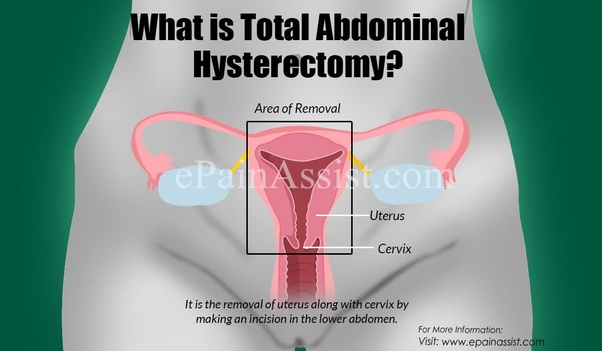 how will i feel after hysterectomy