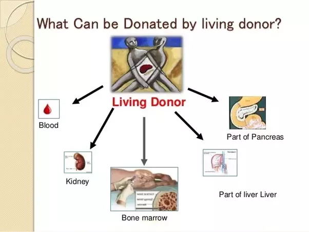 Can I donate all my organs while alive? - Quora