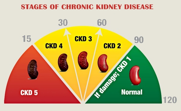 What Are The Stages Of Kidney Disease Quora