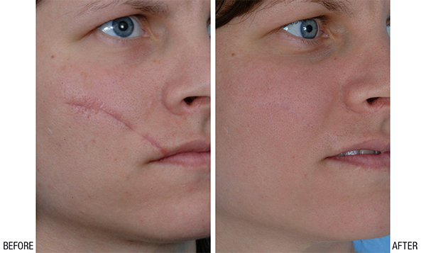 How To Treat A Scar Caused By Stitch Marks On My Face Quora