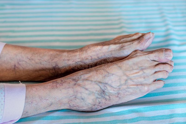 what makes veins blue
