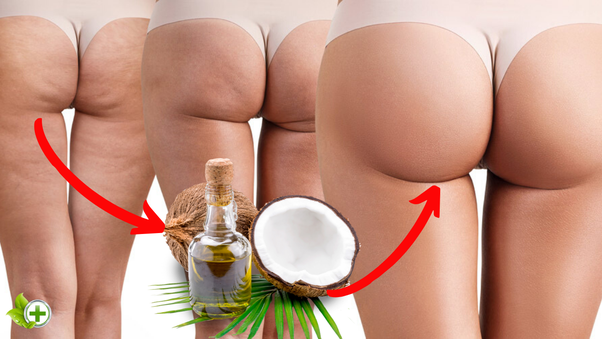How To Get Rid Of Leg Cellulite Quora