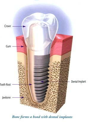 What Justifies The 2300 Plus Cost Of One Titanium Dental Implant