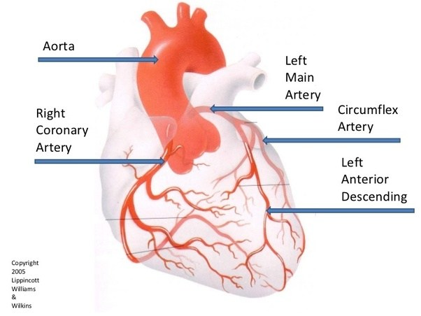Which coronary artery is the 'artery of sudden death'? - Quora