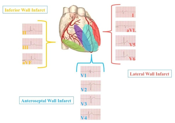 Is an anteroseptal infarct the same as a heart attack? - Quora
