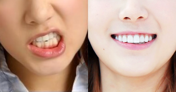 Are The Teeth Of All K Pop Idols Really White Quora