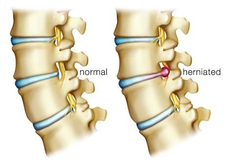 What is the treatment of L4-L5 disc prolapse? - Quora