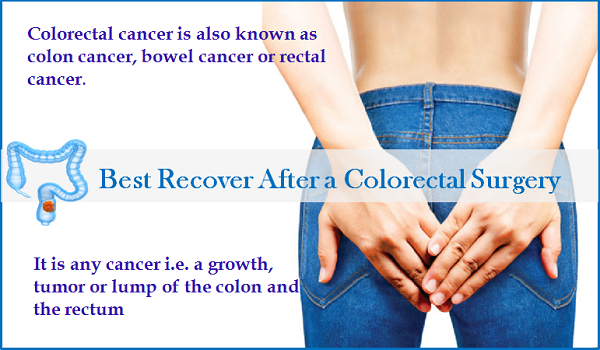 How To Best Recover After A Colorectal Surgery Quora